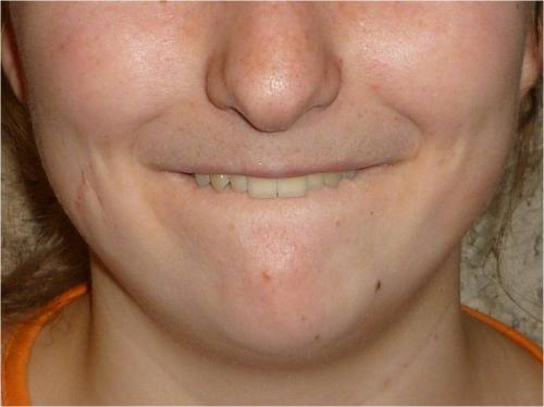 Předsazení zubů