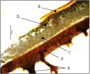 Řez stélkou Parmelia sulcata