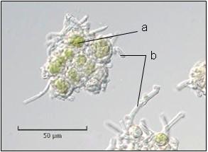 sorédie druhu Hypogymnia physodes