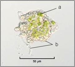 sorédie druhu Cladonia fimbriata